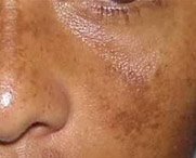Nur76 Melasma Photo